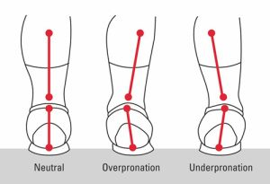 Fallen arch diagram of neutral, overpronation and underpronation