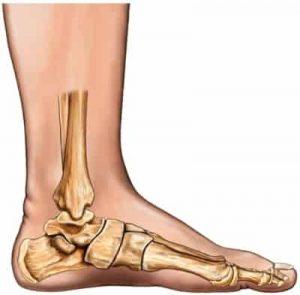 rigid flat foot, flexible flat foot, diagram of flat foot