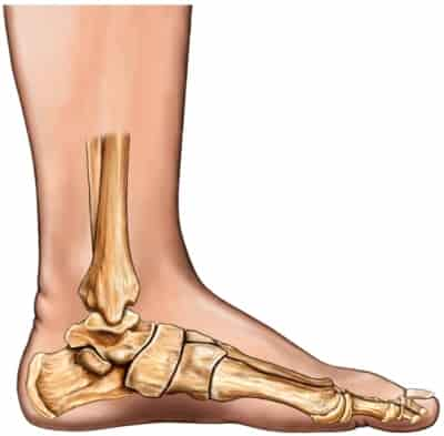 rigid flat foot, flexible flat foot, diagram of flat foot